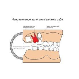 несъёмный ортодонтический аппарат