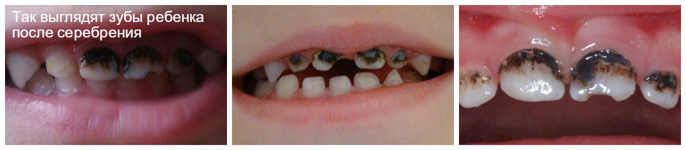 Серебрение молочных зубов у детей Отзывы покупателей 52