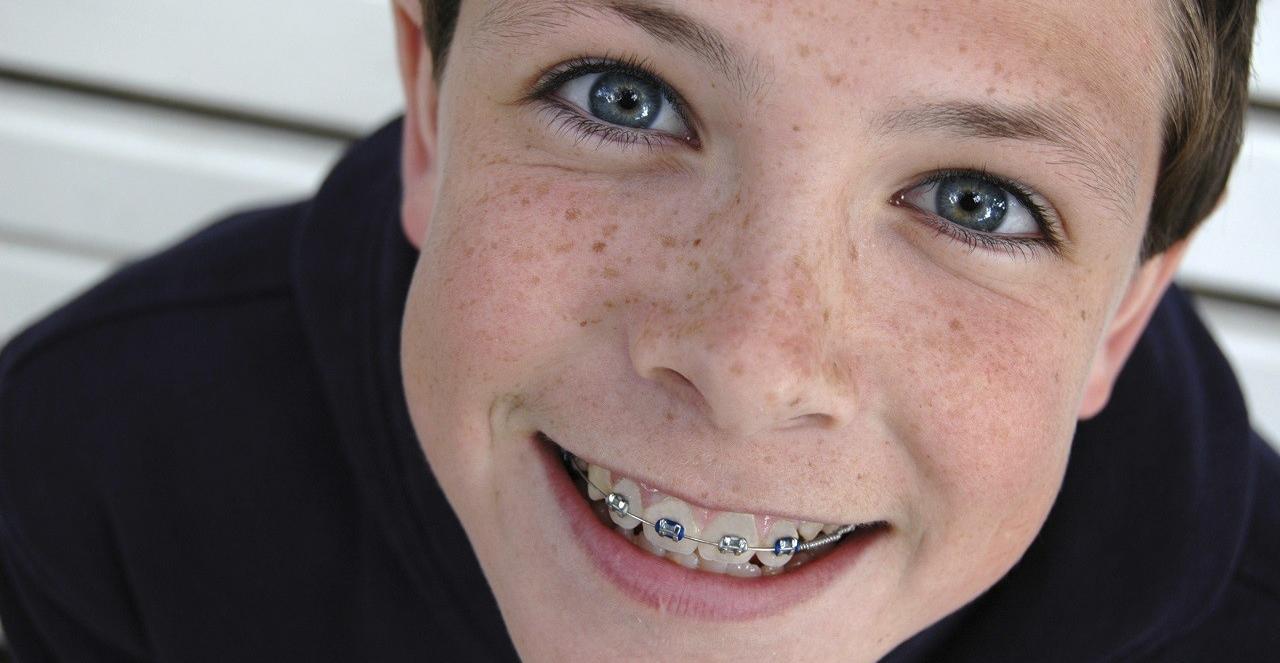 Чистка зубов с брекетами: цена и фото
