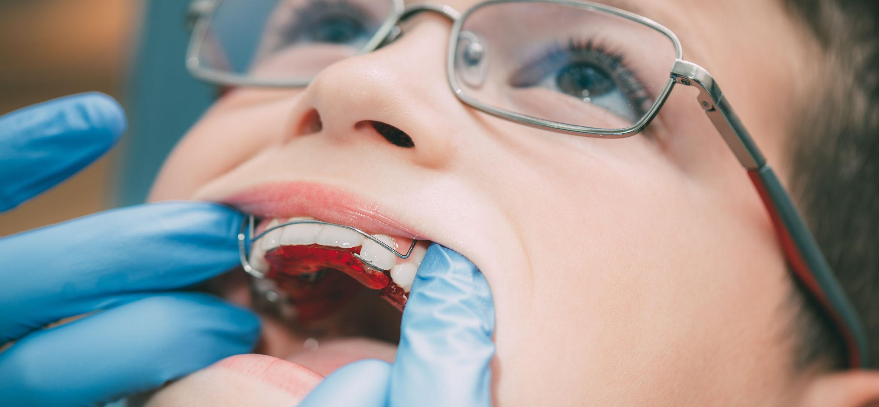 Пластинка для зубов: съемная или несъемная. Какую выбрать?