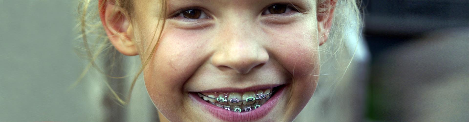Исправление прикуса, выравнивание зубов у детей в Москве